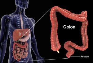 colon surgery