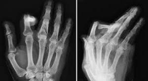 Phalangeal fracture
