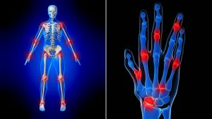 best-rheumatoid-arthritis-dr-nyc-01