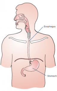 expert-top-esophagectomy-cancer-surgeon-nyc-01