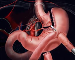 gastric-bypass-surgery-stomach-stapling-experts-info-03