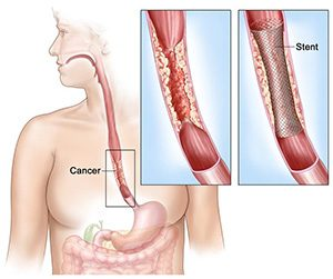 top-esophagectomy-surgeons-nyc-ny-expert-specialists-03