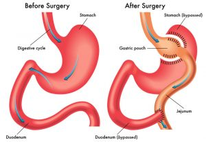 stomach-surgery-medical-information-best-surgeons-nyc-02