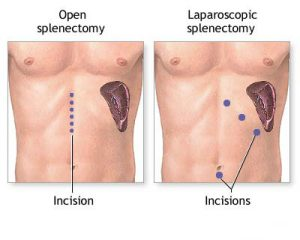 open-splenectomy-laprascopic-splenectomy-spleen-surgery-expert-surgeons-nyc-01