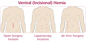 hernia-repair-surgery-methods-faq-info-02