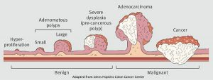 polyp-stages-colorectal-cancer-03