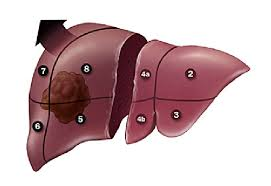 resection-surgeon-for-liver-cancer-02