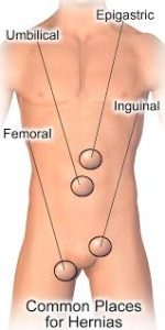 top-nyc-general-surgeons-for-hernia-repair-01